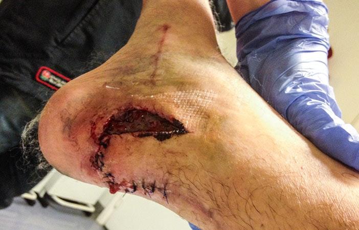 滑雪板伤脚踝2