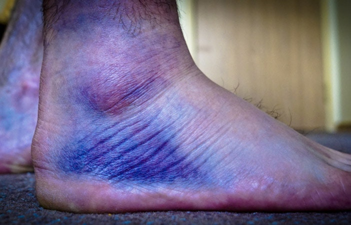 Snowboard Injury Bruised Ankle