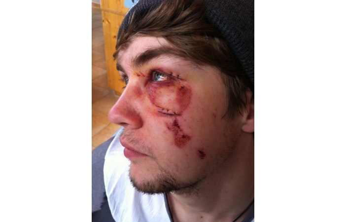 Snowboard Injury Face Stitches