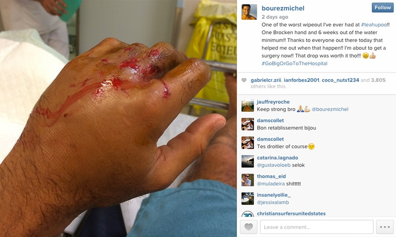 Michel Bourez's broken hand, in a photo posted on Instagram after his Teahupoo wipeout