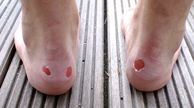 how to care for blisters on feet